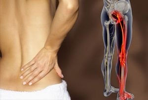 Back and Hip Pain Anatomy